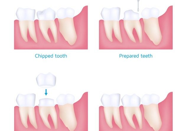 Dental Crowns cosmetic treatment